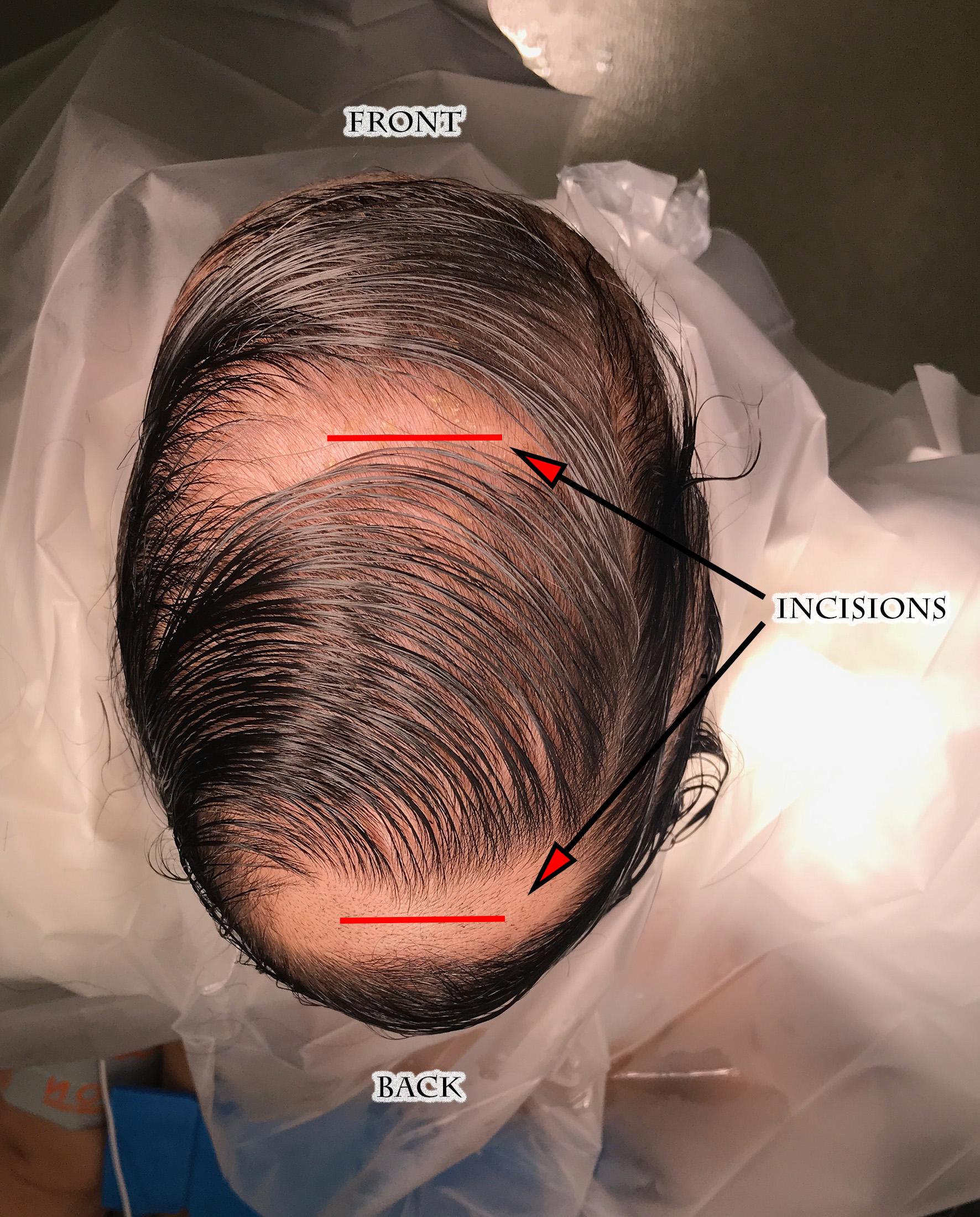 Sagittal incisions