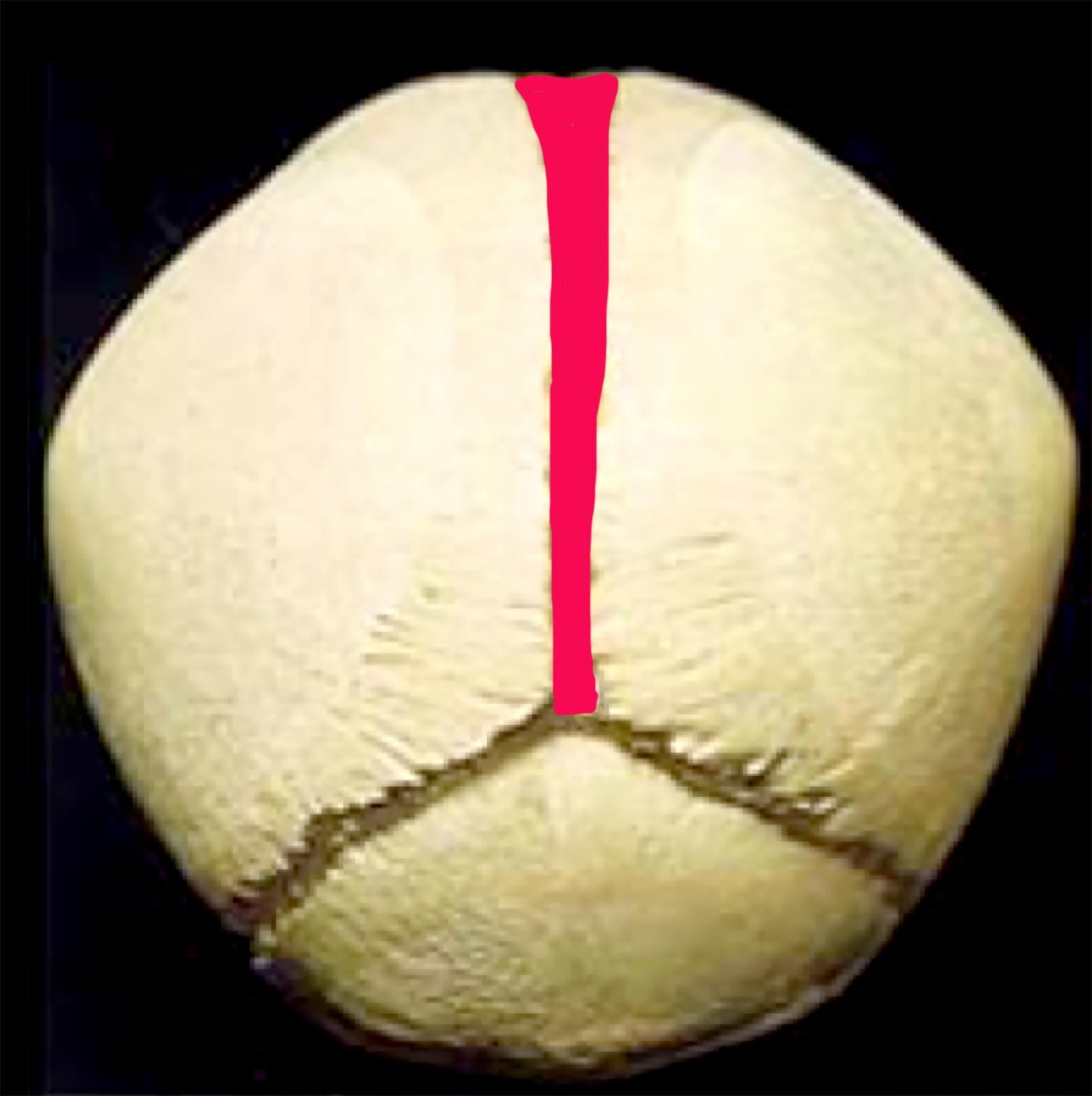 sagittal back