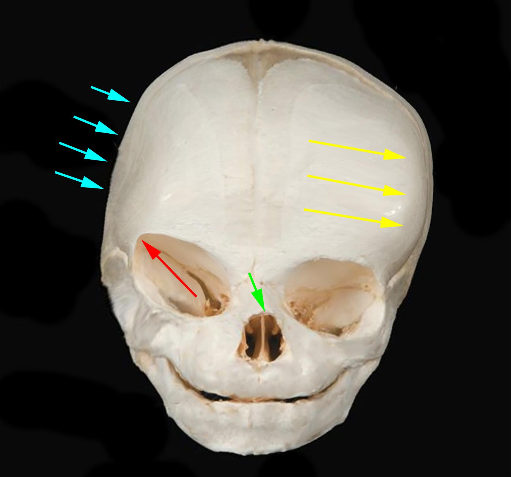 Coronall skull AP
