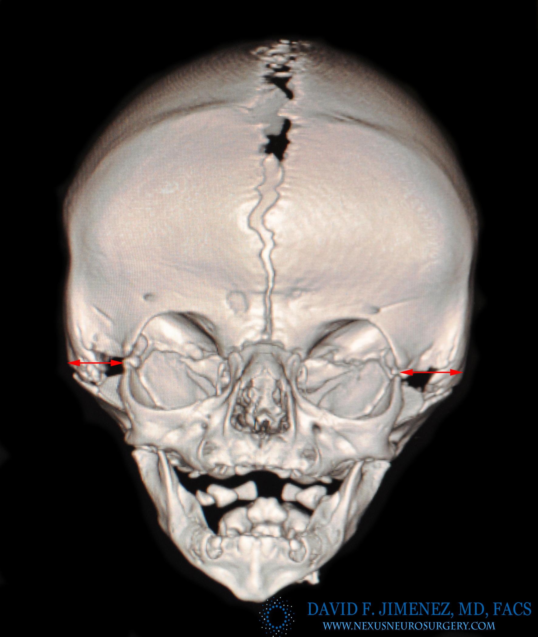 Bicor 3D CT arrow logo