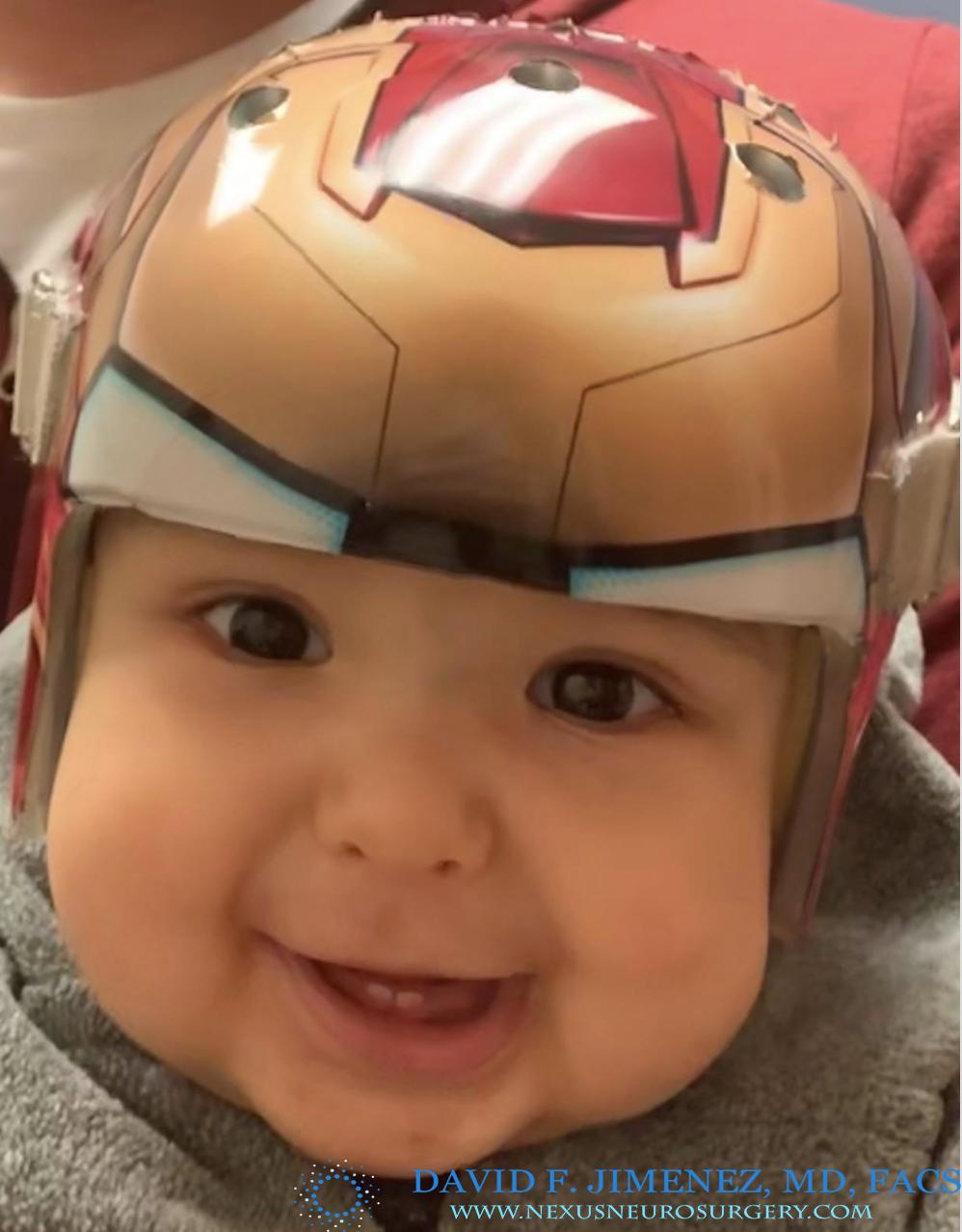 Helmet C